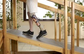 Illustrasjonsbilde av person med fotprotese.