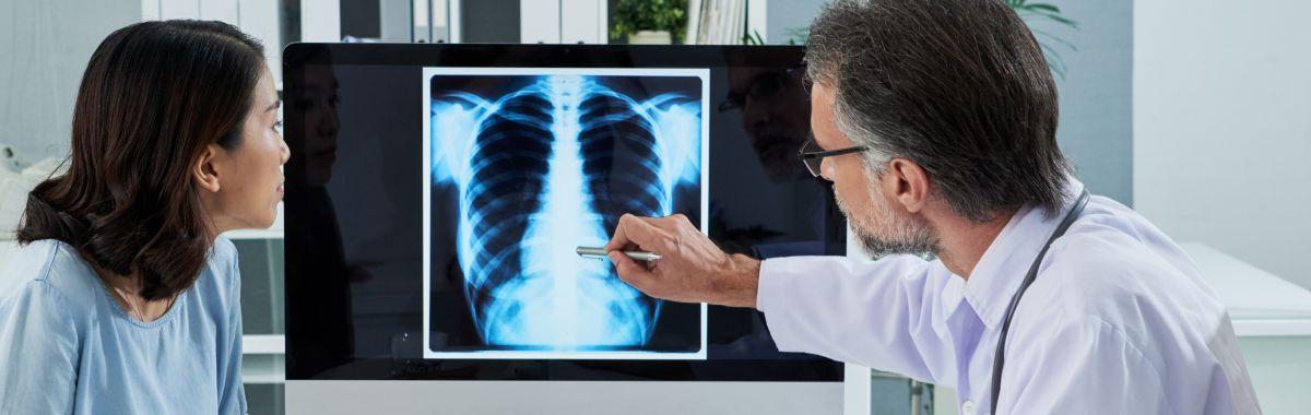 Lungespesialist forklarer røntgenbilde av lunger til pasient